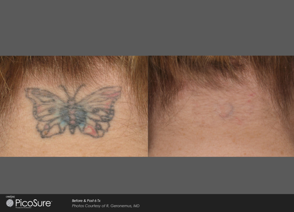 PicoSure™ Laser Tattoo Removal - Maine Laser Clinic