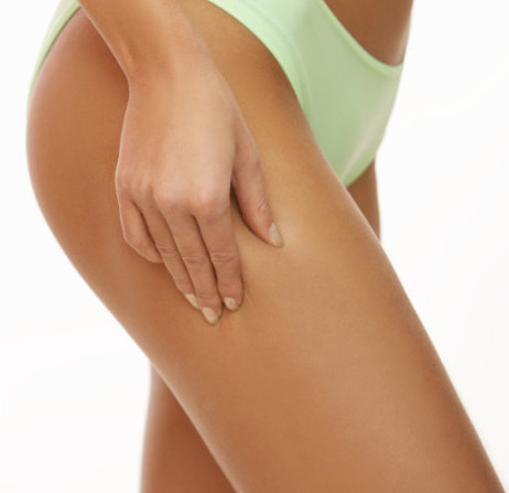 Spider Veins treated at Maine Laser Clinic