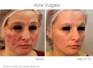 Acne Treatment Before And After Maine Laser Clinic