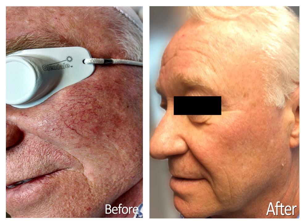 Rosacea Maine Laser Clinic