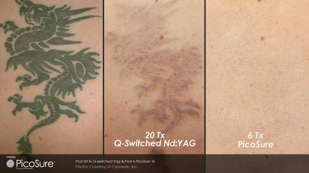 Tattoo removal cost - How much does it cost to remove a tattoo ...