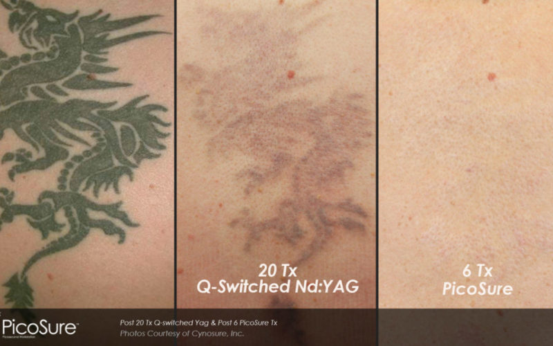 tattoo removal price Archives - Maine Laser Clinic