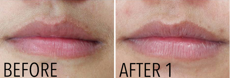 Before After Lips Maine Laser Clinic