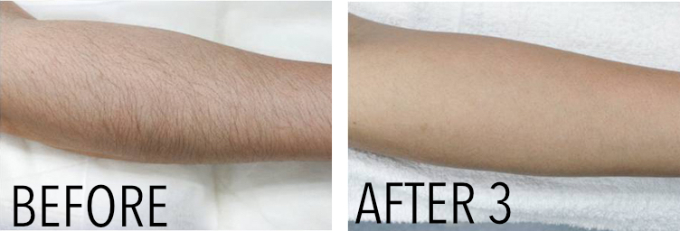 Laser Hair Removal Using Mulitple Laser Platforms Results Driven