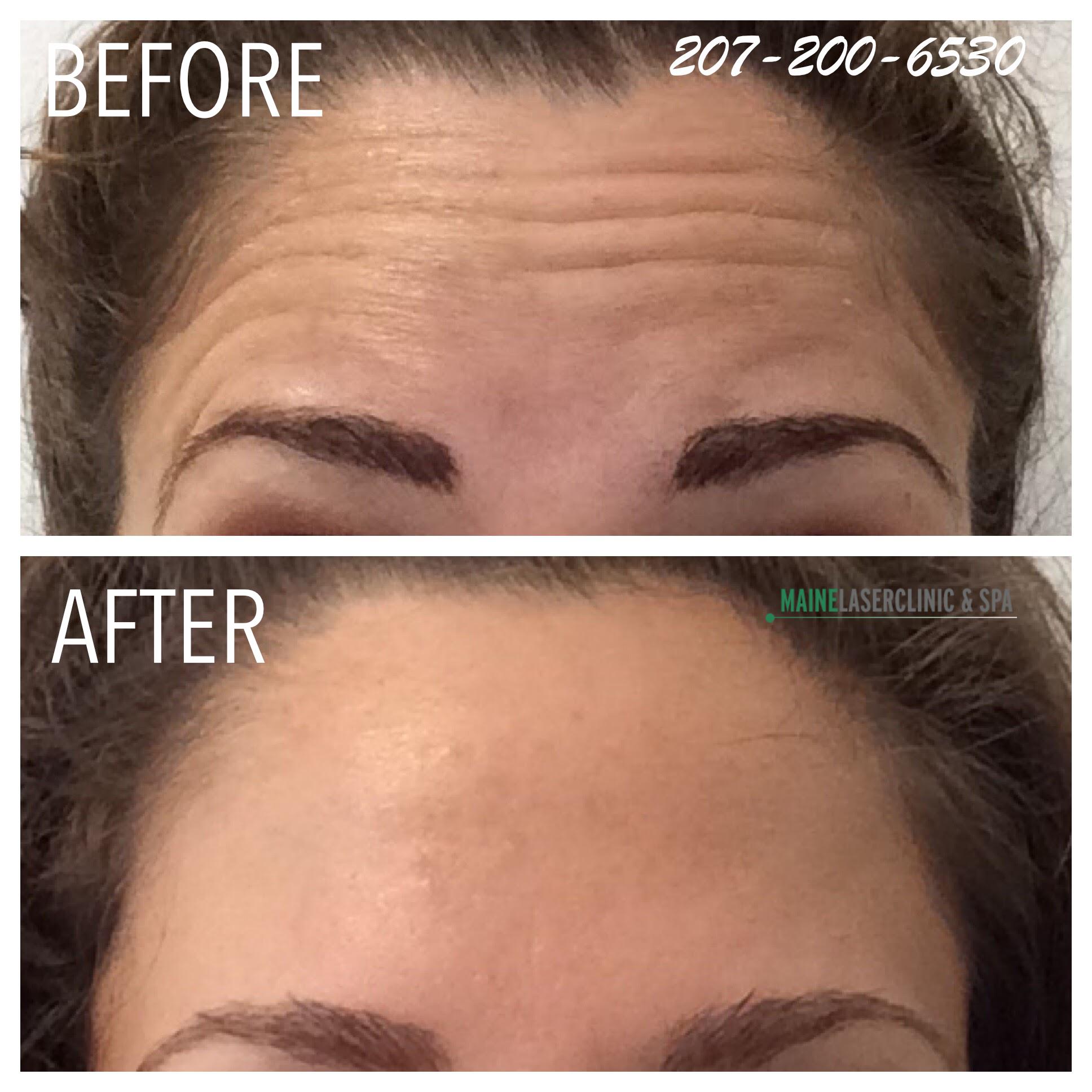 Botox®