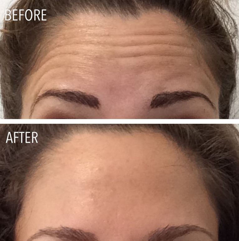 Botox injections in Portland Maine - fantastic results