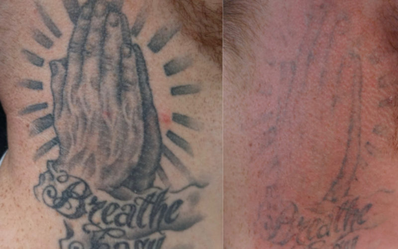 What your tattoo could look like after one tattoo removal treatment