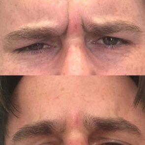 Botox for Men - Maine Laser Clinic